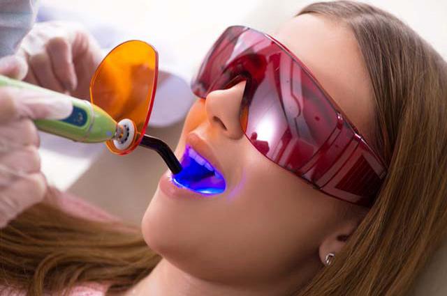 Ատամների լուսային պլոմբավորում: Առավելությունները