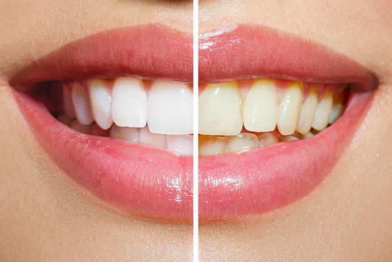 Ատամների Air flow մաքրումը սպիտակեցո՞ւմ է համարվում