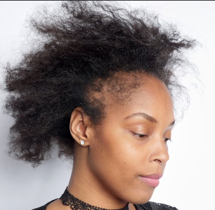 What is Stress doing to my hair Health?